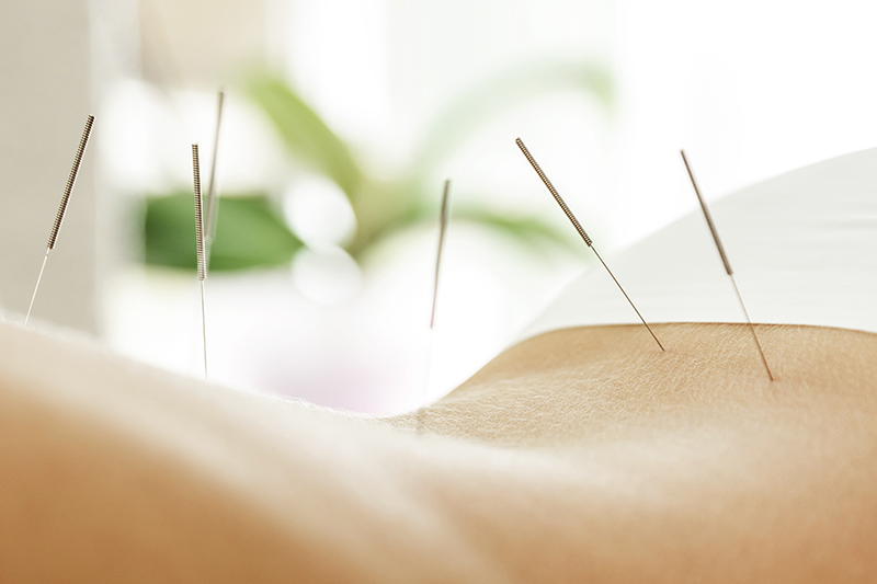 Akupunktur, Dr. med. Josephine Reiche, Berlin